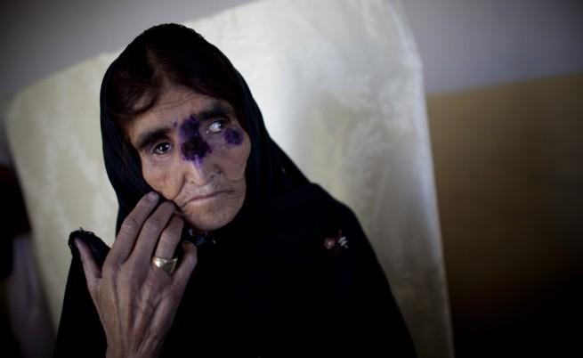 Жена, страдаща от лайшманиоза