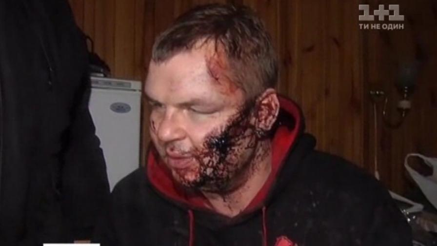 Намериха отвлечения киевски активист жив, но измъчван
