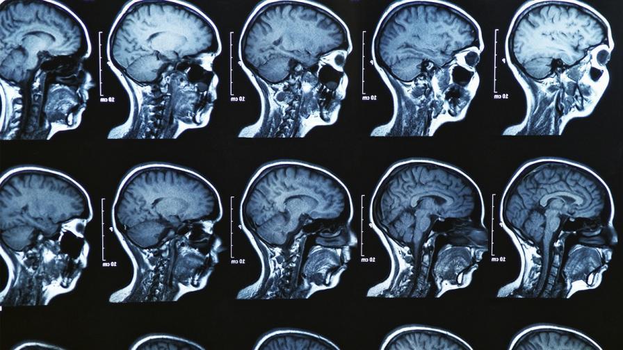 Има връзка между болестта на Паркинсон и депресията