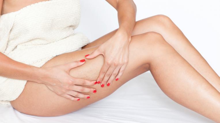 целулит жена крака хавлия тяло