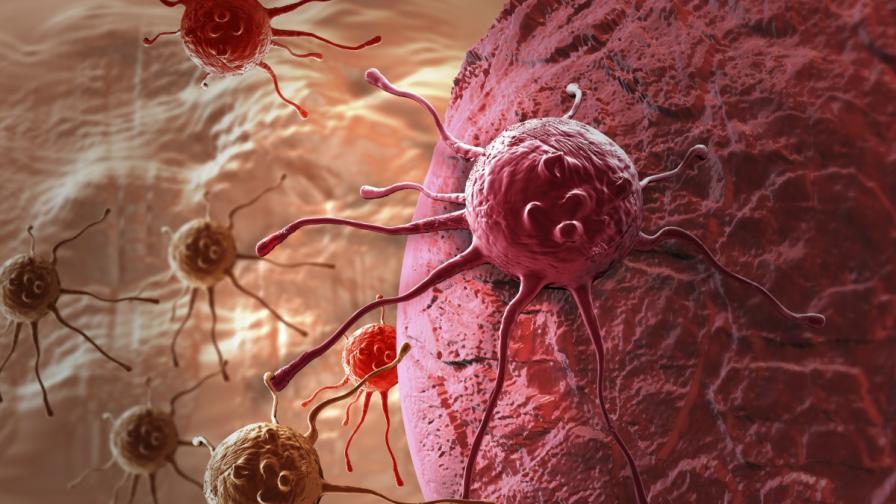 Заплашено ли е младото поколение от бум на рака