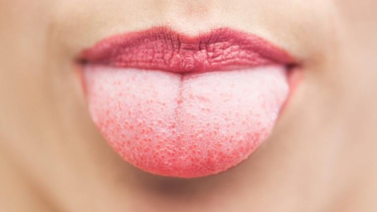език здраве зъболекар стоматолог