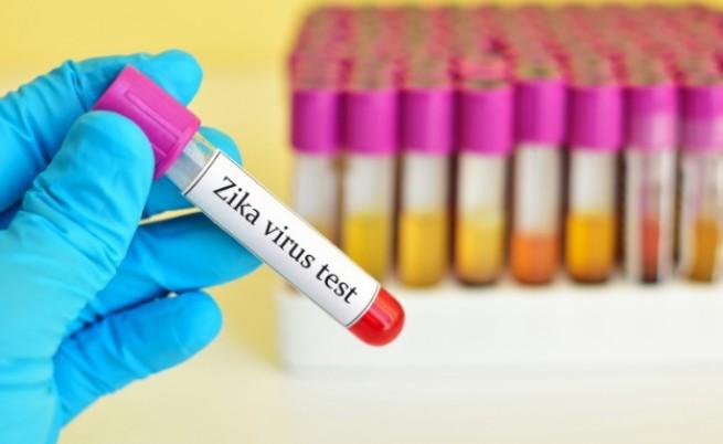 СЗО обяви, че вирусът Зика е глобална опасност
