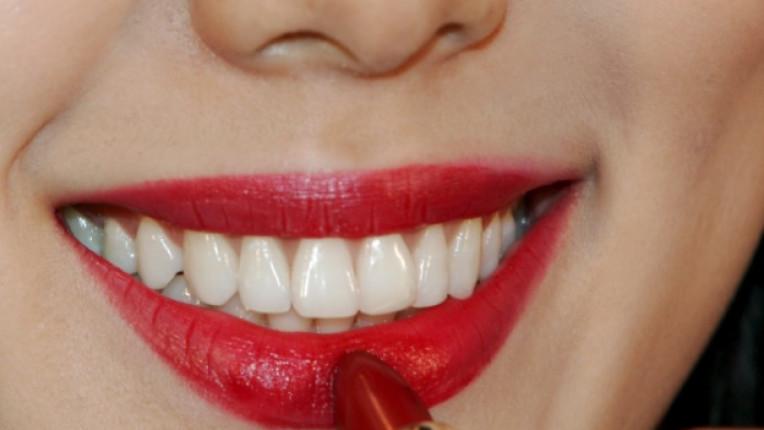 усмивка бели зъби зъболекар
