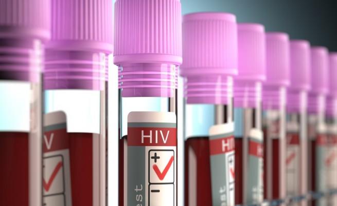 СПИН: Източна Европа е по-зле от Африка