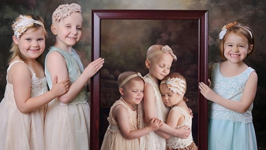 Три момиченца, преборили рака, с трогателна фотосесия