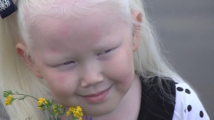 8-годишното момиченце, което пленява с порцеланова кожа