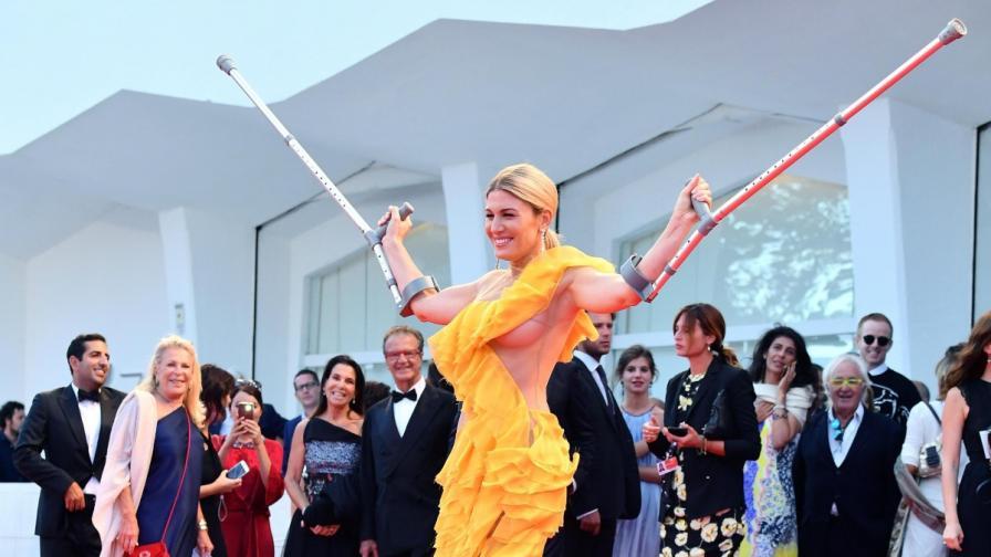 Хофит Голън с патерици и без сутиен на червения килим във Венеция