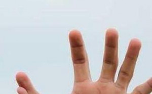 Вратарят с 11 пръста на ръцете