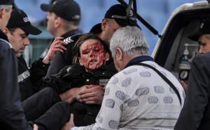 Ранената на Левски - ЦСКА полицайка: Инцидент като този променя съдби