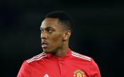Нападател на Манчестър Юнайтед под въпрос за финала за купата