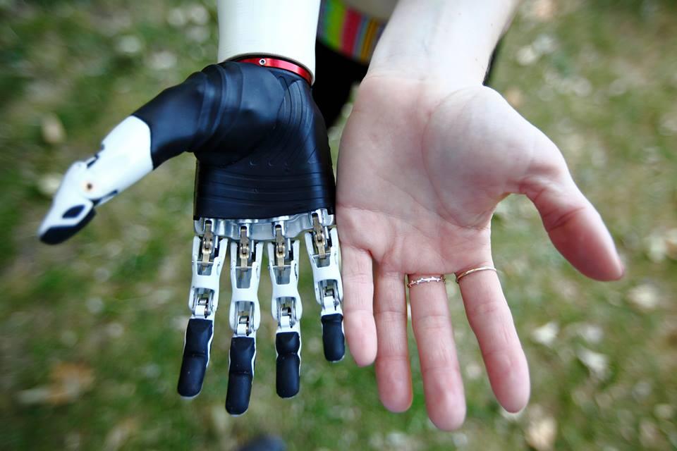 Британската компания Bebionic създава високотехнологичната протеза.
