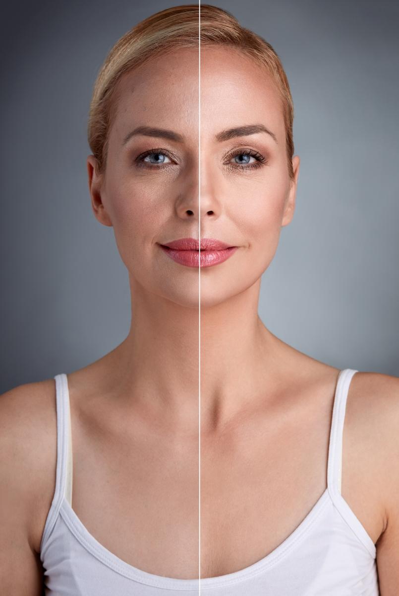 Състоянието на кожата видимо ще се подобри. Тъй като все пак тялото вече ще е по-хидратирно, това ще се отрази и на кожата ви. При много хора с екземи има подобряване на състоянието след като спрат консумацията на алкохол.