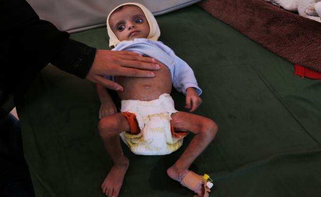 Десетки хиляди деца умират от глад в Йемен