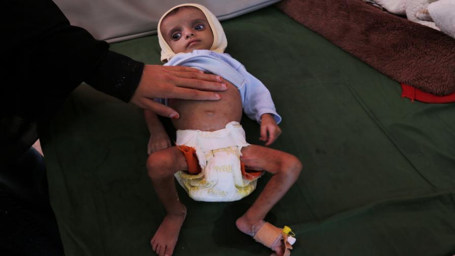 Гладът в Йемен