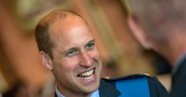 Принц Уилям има интересен белег в лявата част на челото