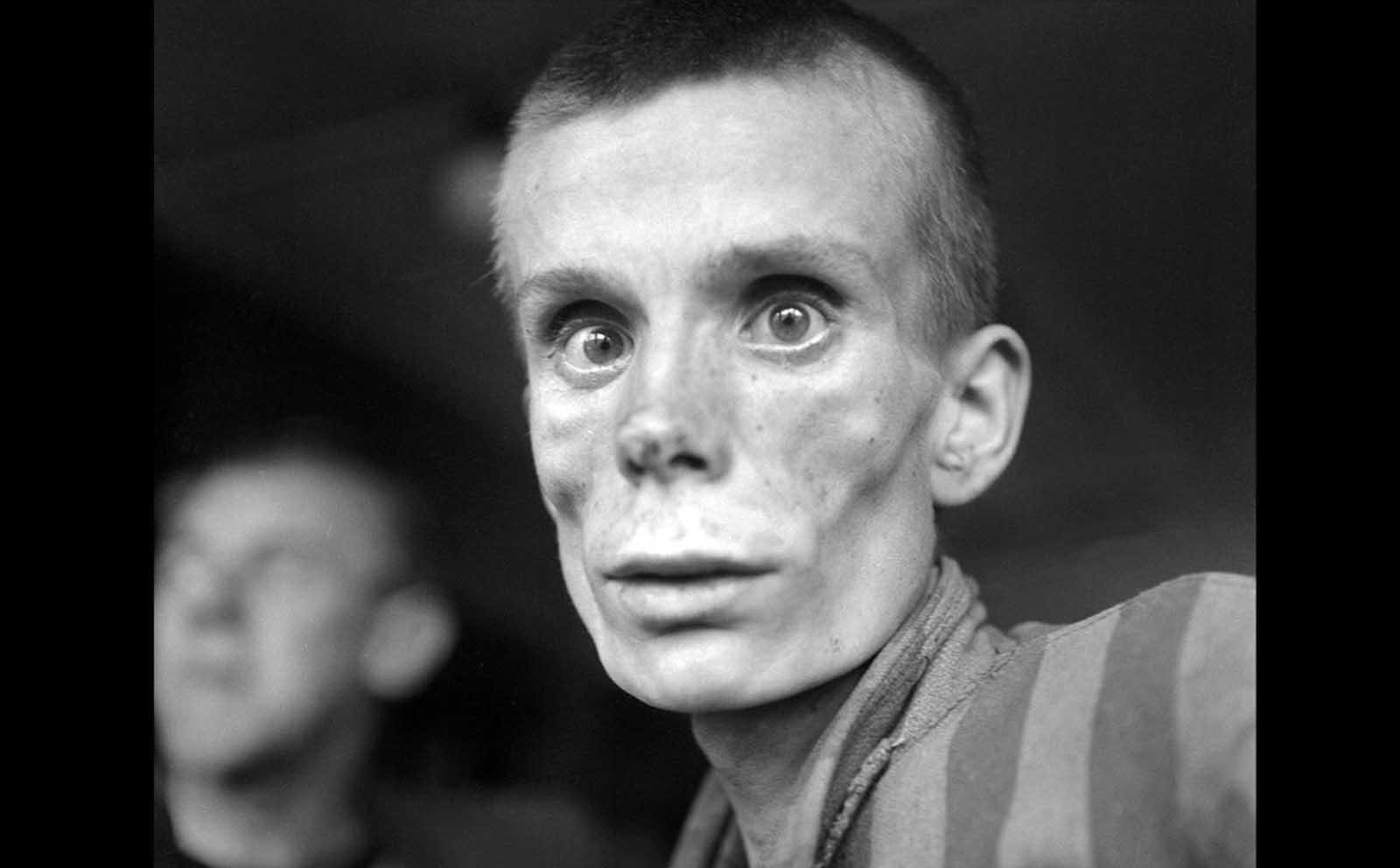 """18-годишно момиче от руски произход при освобождаването на концентрационния лагер Дахау през 1945 г. Прочетете историята на <a href=""""https://www.vesti.bg/lyubopitno/istoriata-pomni/angelyt-na-aushvic-edna-lekarka-spasila-stotici-6072040"""">""""Ангелът на Аушвиц"""", една лекарка спасила стотици жени</a> в лагера."""