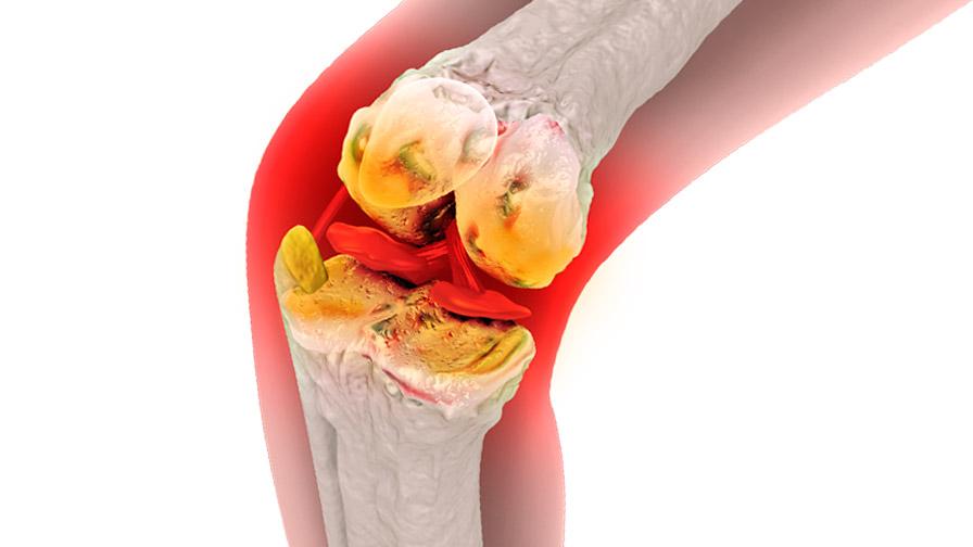 Болката в коленете идва изведнъж, а може да ни прикове вкъщи завинаги