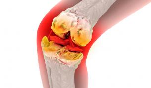 Медицинско откритие бори ставните болки