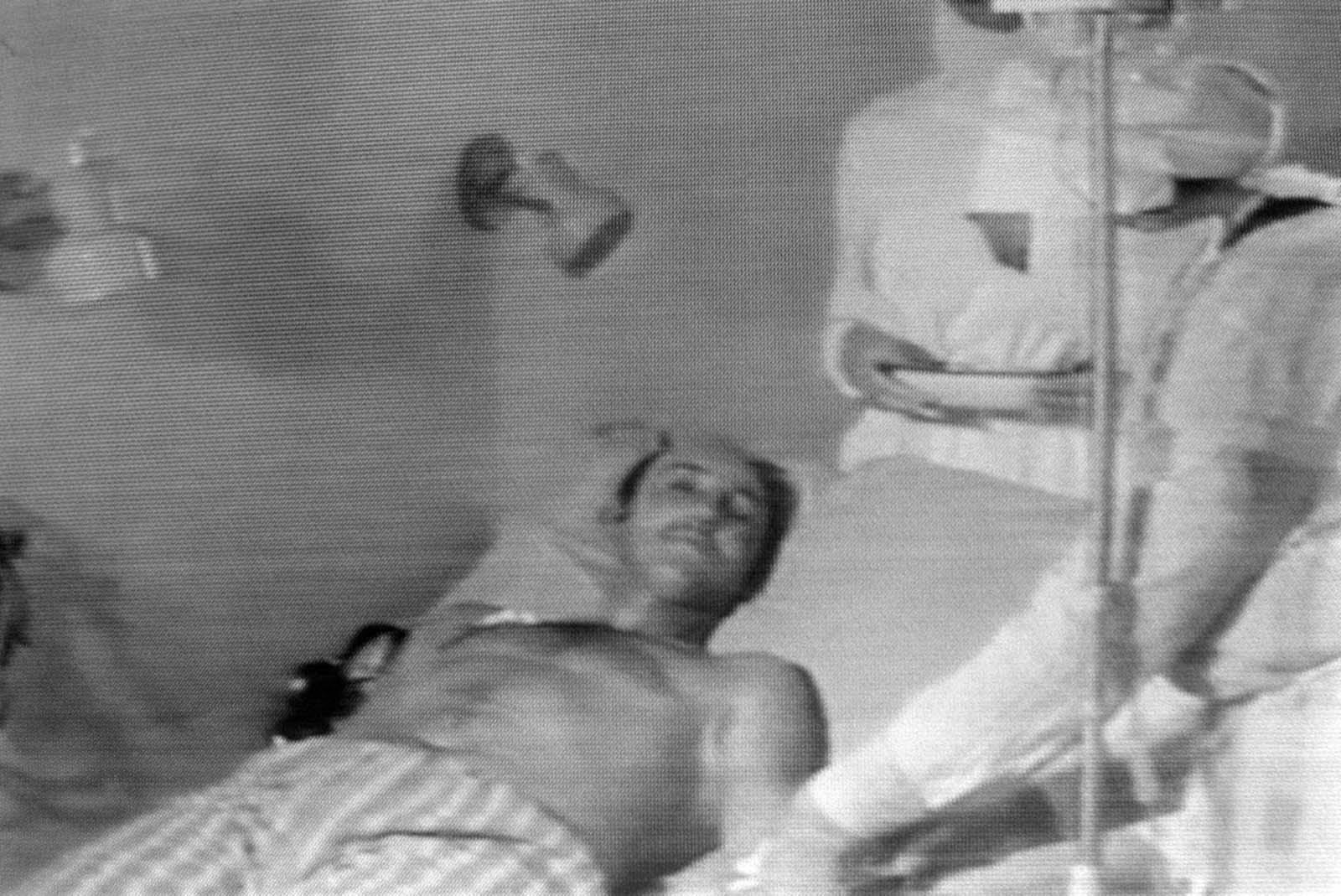 Снимка от излъчване на материали по съветската телевизия, показващи лечението на човек, пострадал от ексползията.