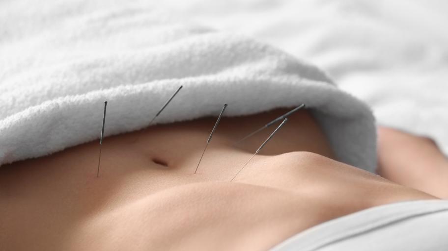 Акупунктурата в помощ на фертилността