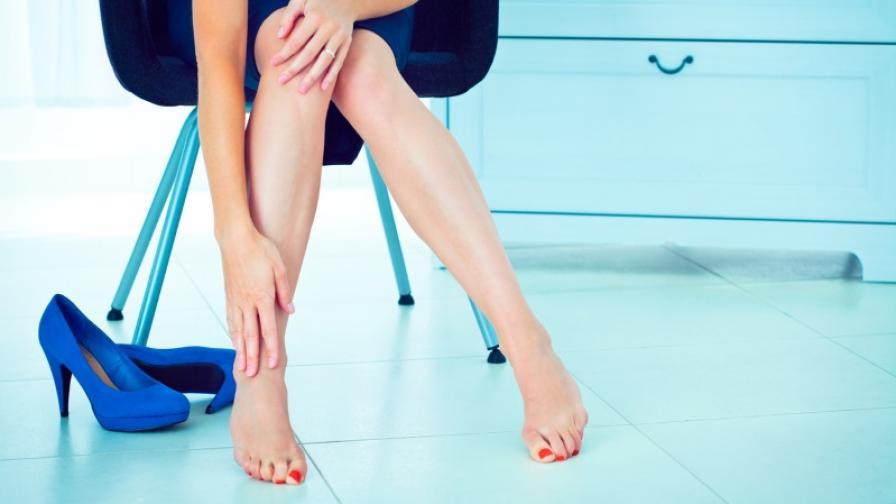 Доц. Д-р Димитър Петков: Високите токчета и тесните дрехи са вредни за вените