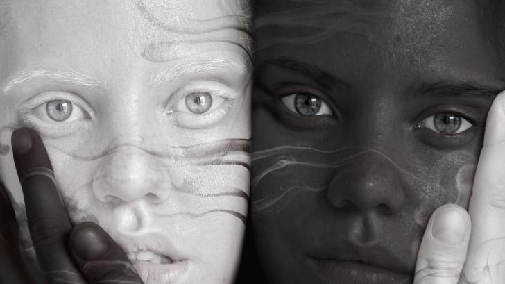 Чудо на природата: невероятната история на близнаците, които се раждат с различен цвят