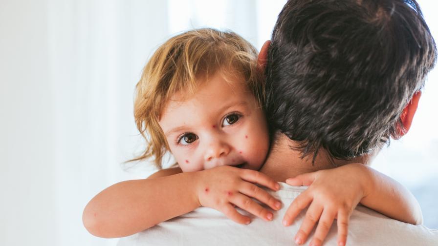 Какво не знаем за варицелата
