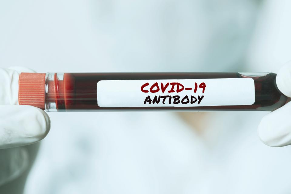коронавирус тест антитела