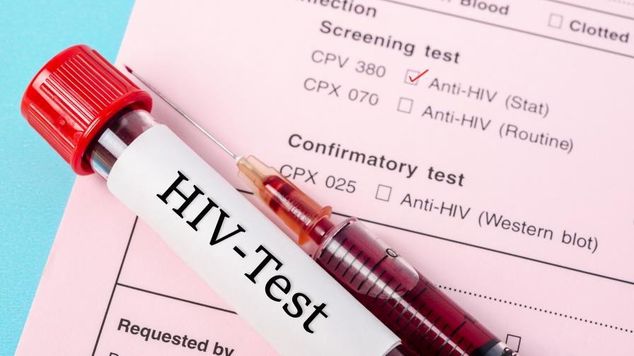 Защо все още няма ваксина срещу СПИН