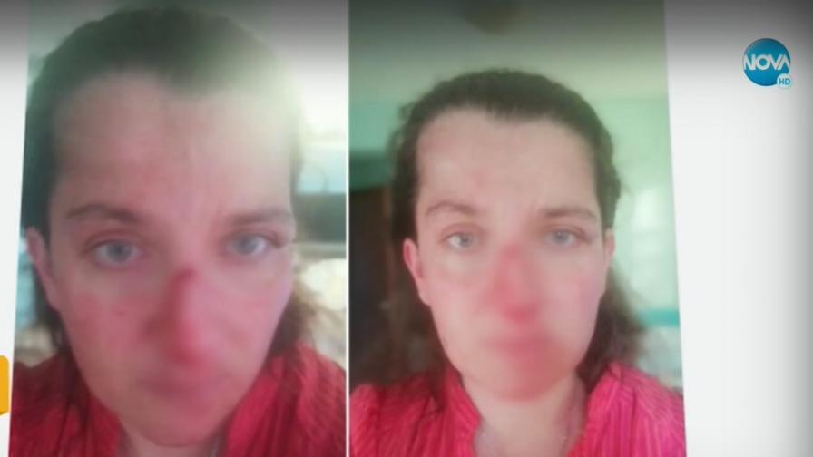 Мъж с биполярно разстройство преби сестра си в дома ѝ