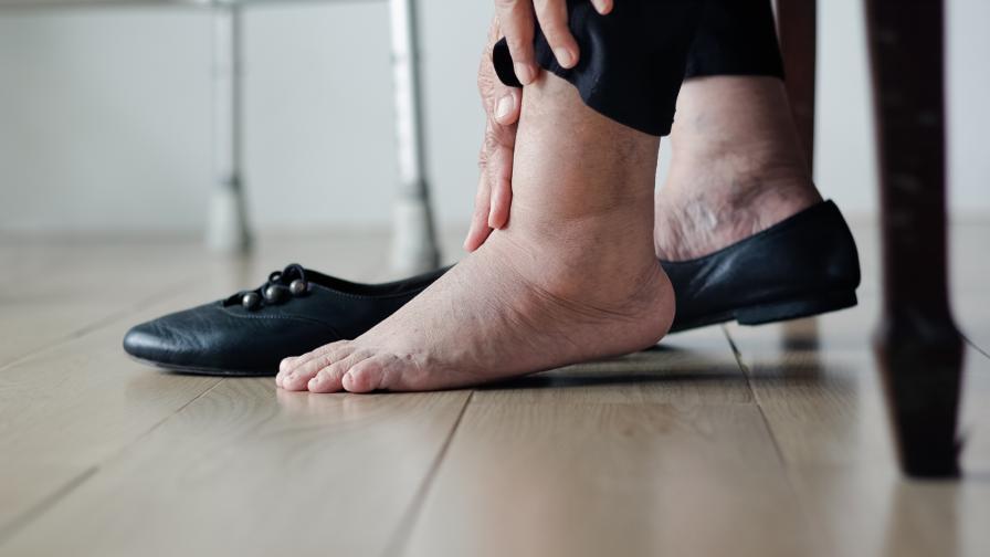 отоци стъпала крака