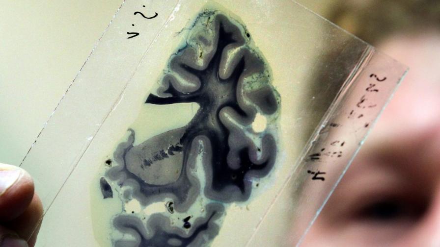 Мозъчна стимулация ще ни помага да решаваме задачи